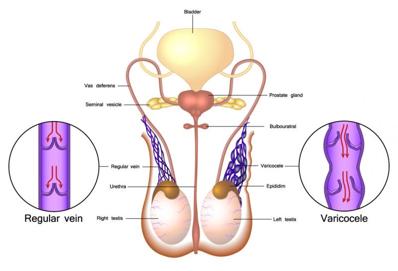 Giãn tĩnh mạch thừng tinh bệnh nam khoa ở nam giới