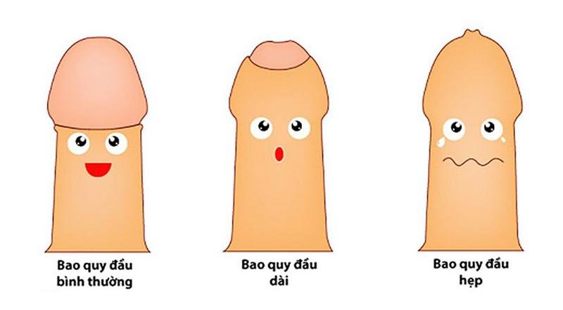 Bao quy đầu dài hoặc hẹp là nguyên nhân khiến nam giới bị xuất tinh sớm
