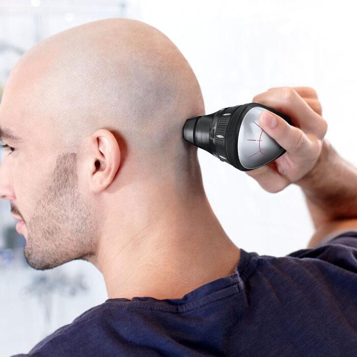 Rụng tóc ở nam giới có những ảnh hưởng gì đến sức khỏe tinh thần?