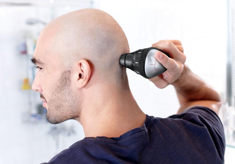 Điểm mấu chốt khi rụng tóc ở nam giới: Bạn không phải là tóc của bạn