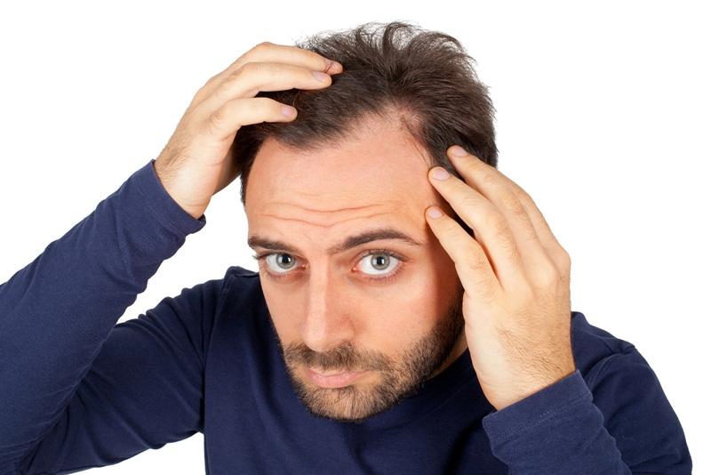 Testosterone thấp khiến đàn ông bị rụng nhiều lông và tóc