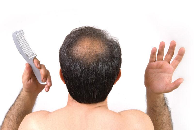 Bệnh hói đầu dễ nhận thấy khi tóc mọc không cân đối
