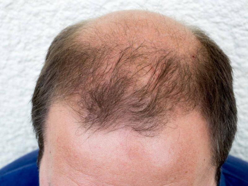 Sự phát triển của tóc không cần đến sự hiện diện của hormone DHT