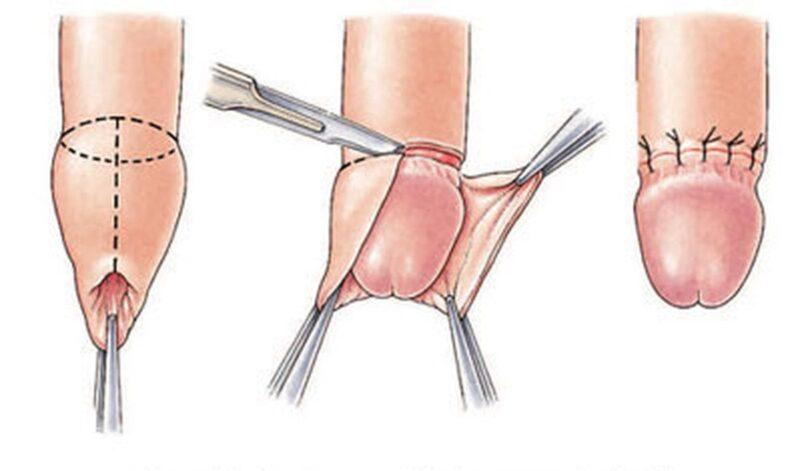 Bác sĩ cũng có thể rạch một vết nhỏ để giảm áp lực.