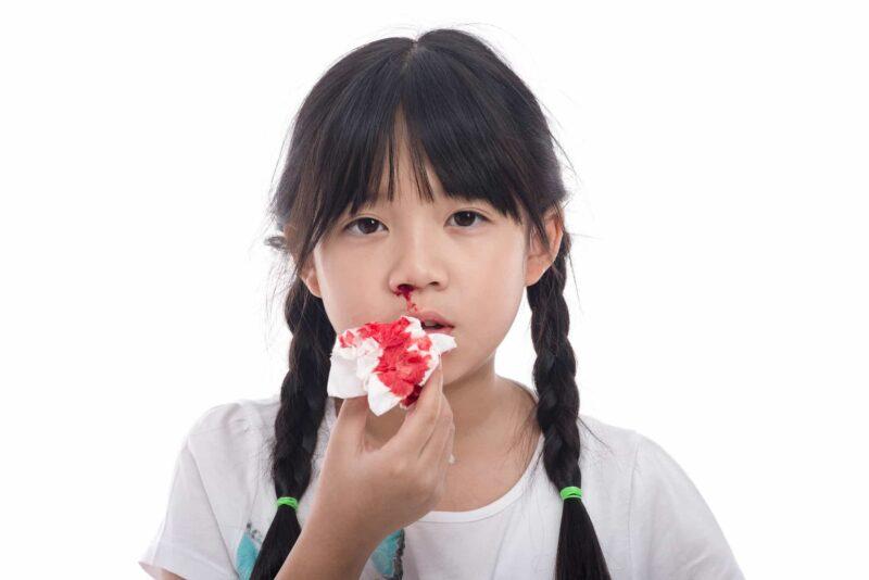 Phần lớn bệnh được chẩn đoán khi bệnh nhân 5 – 6 tuổi.