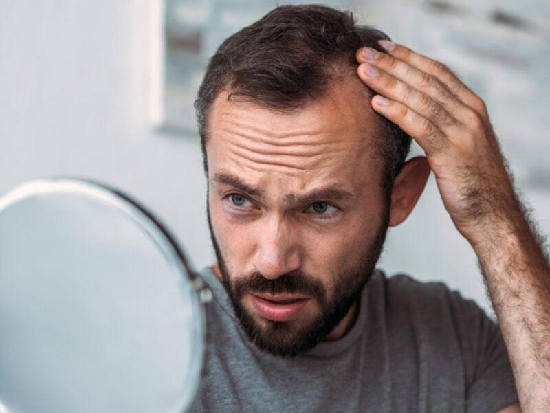 Bệnh rụng tóc này khác với bệnh hói ở nam giới.