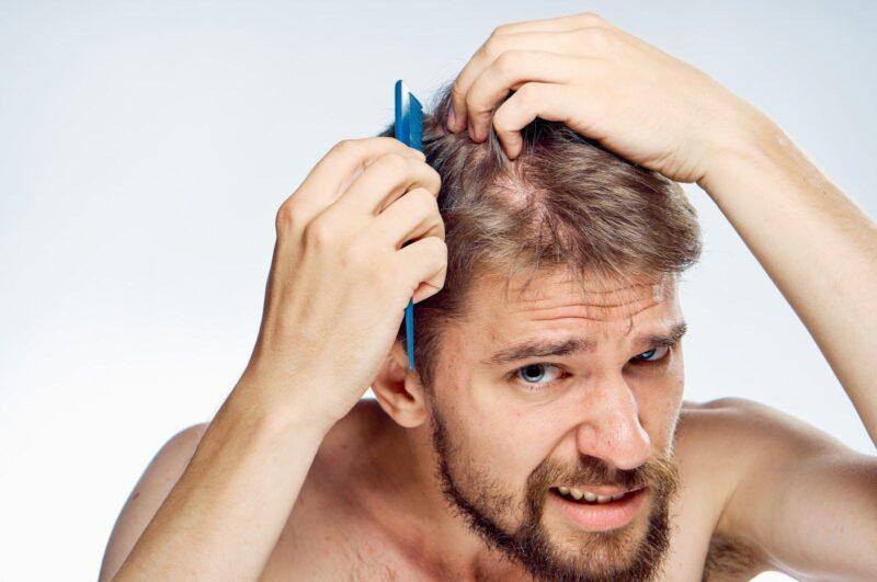 Không sớm thì muộn, bất cứ người đàn ông nào cũng sẽ rụng tóc mà thôi