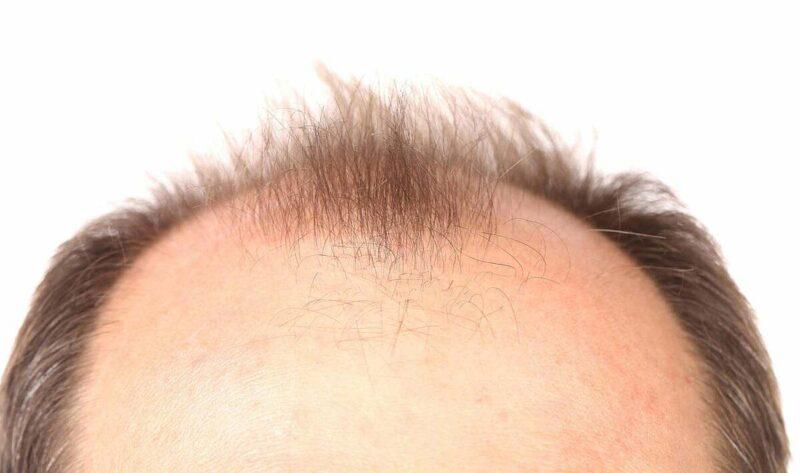 Bệnh hói đầu dễ nhận thấy khi tóc mọc không cân đối và có nhiều mảng tóc rụng ở khu vực thái dương